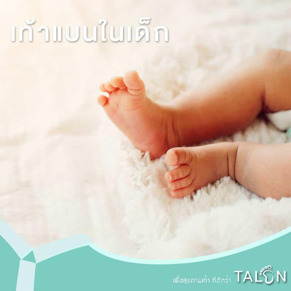 เท้าแบนในเด็ก