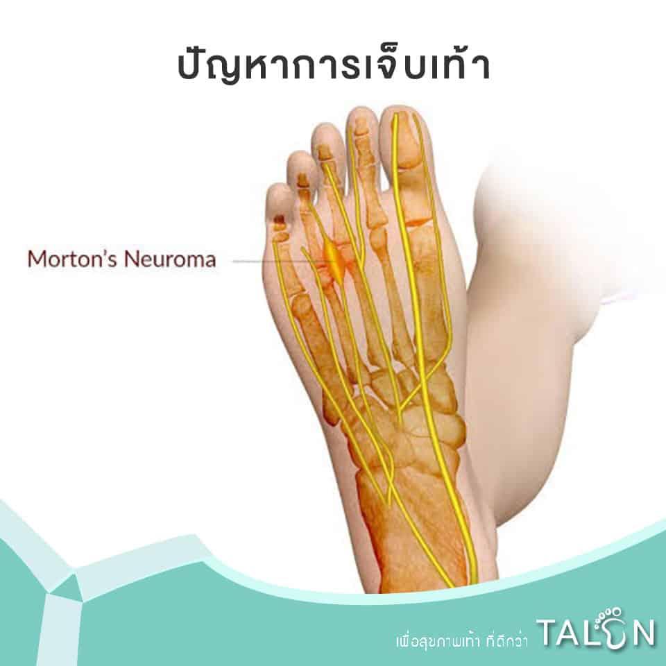 ปัญหาการเจ็บเท้า