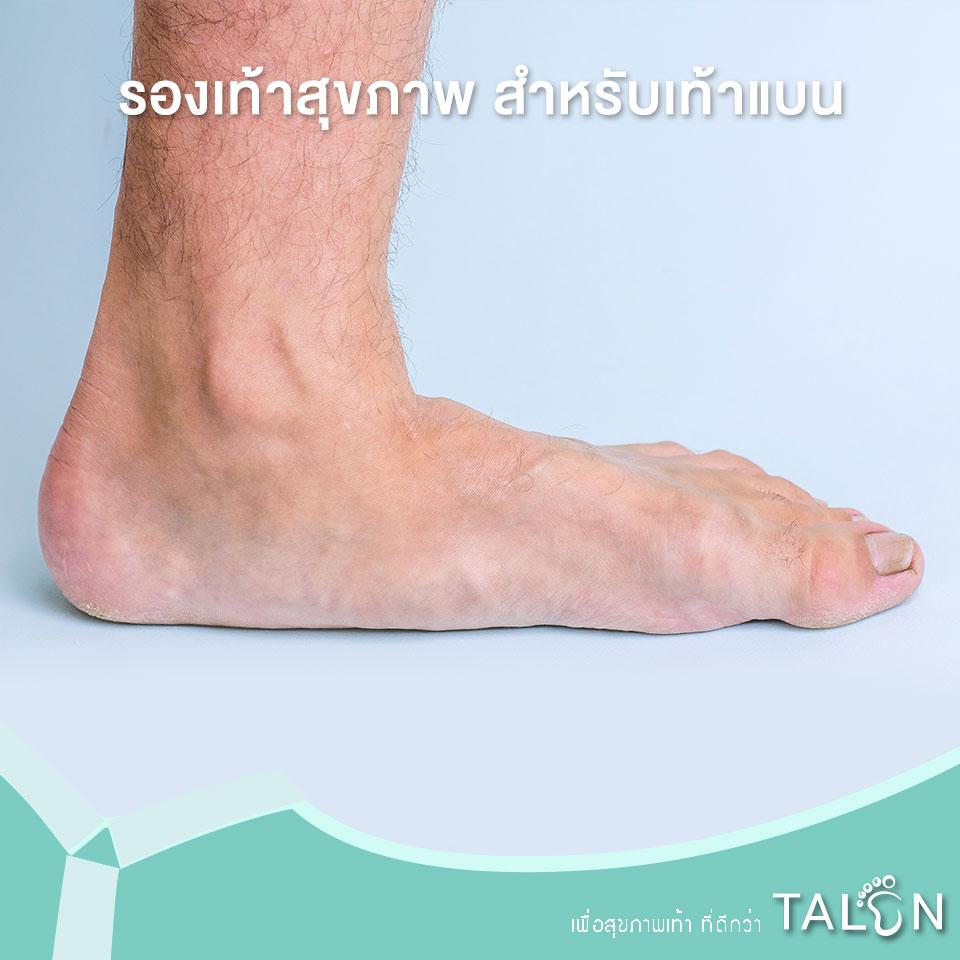 รองเท้าสุขภาพ-สำหรับเท้าแบน